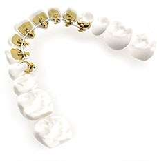 3M Lingual Invisible Orthodontist Braces Hawthorn